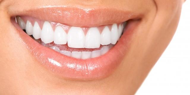 Малките навици, които съсипват зъбите ни